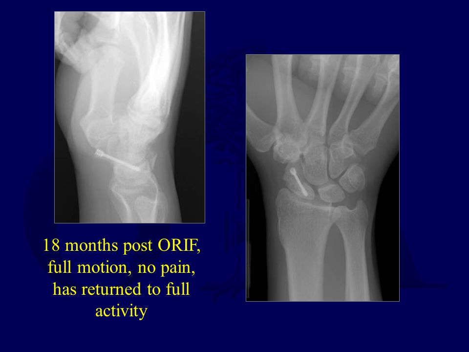 18 months post ORIF, full motion, no pain, has returned to full activity