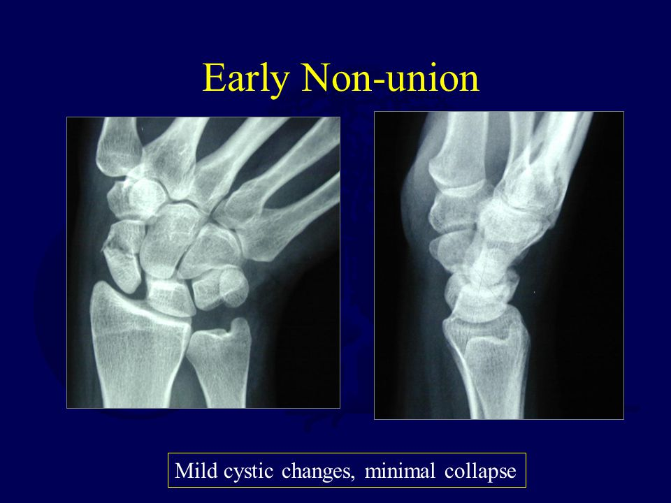 Early Non-union Mild cystic changes, minimal collapse