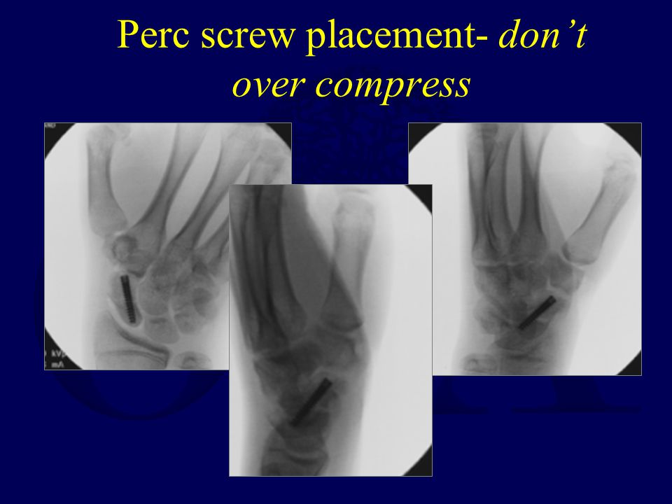 Perc screw placement- don't over compress
