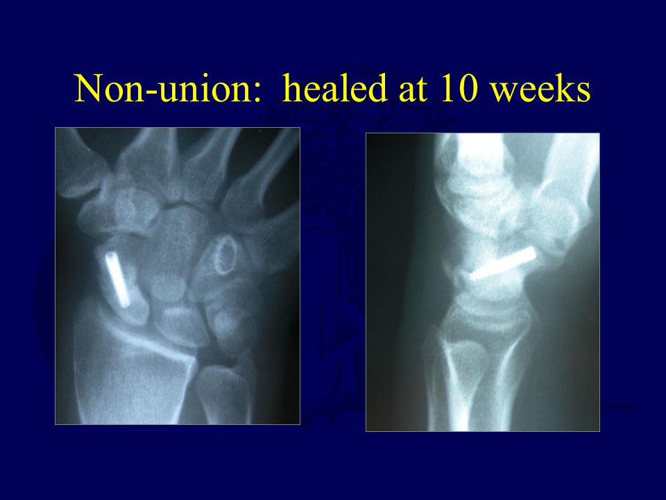 Non-union: healed at 10 weeks