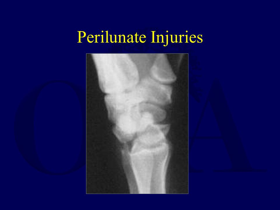 Perilunate Injuries