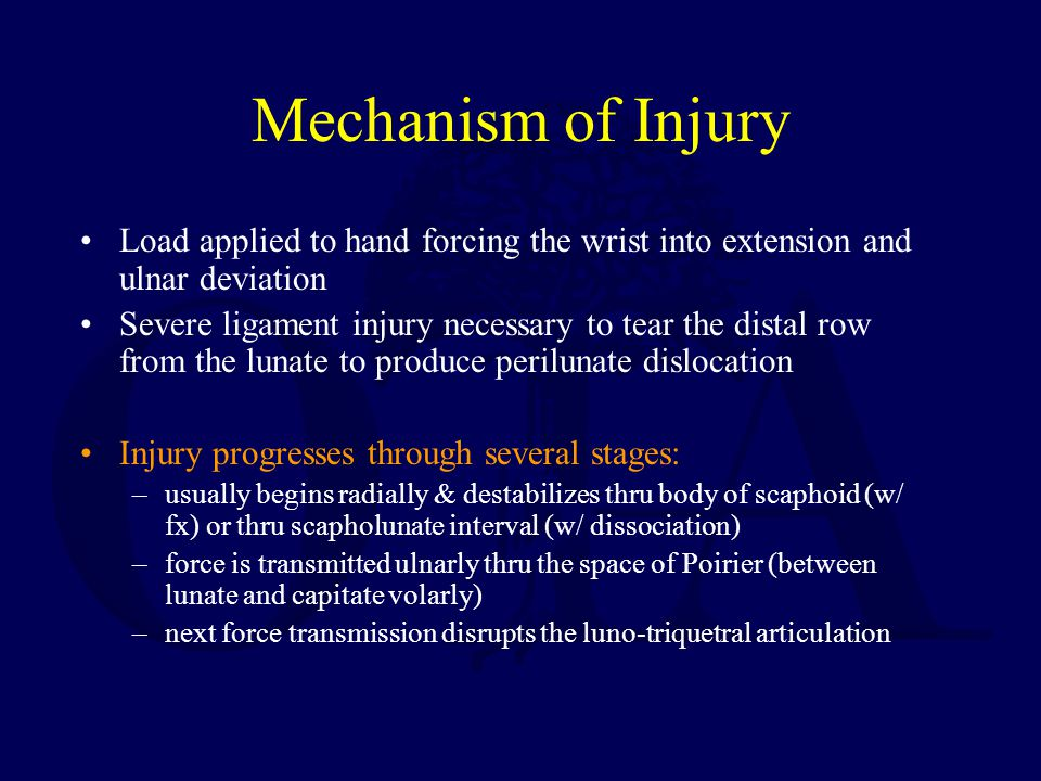 Mechanism of Injury Load applied to hand forcing the wrist into extension and ulnar deviation.