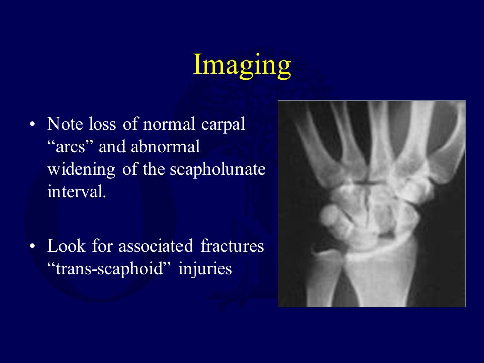 Imaging Note loss of normal carpal arcs and abnormal widening of the scapholunate interval.