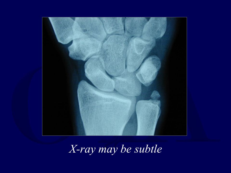 X-ray may be subtle