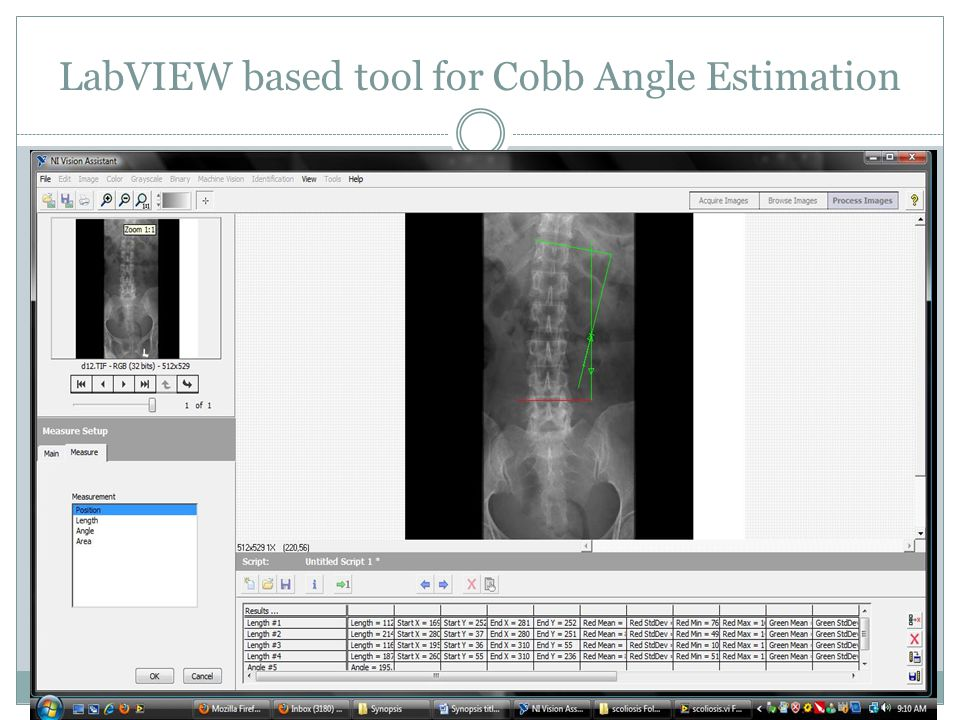 LabVIEW based tool for Cobb Angle Estimation