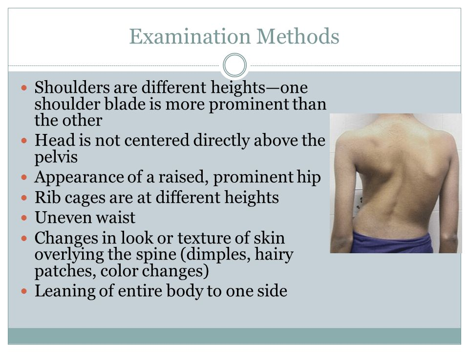 Examination Methods Shoulders are different heights—one shoulder blade is more prominent than the other.