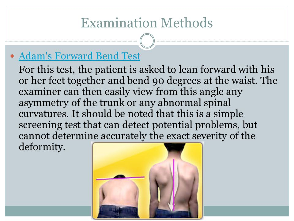 Examination Methods Adam s Forward Bend Test