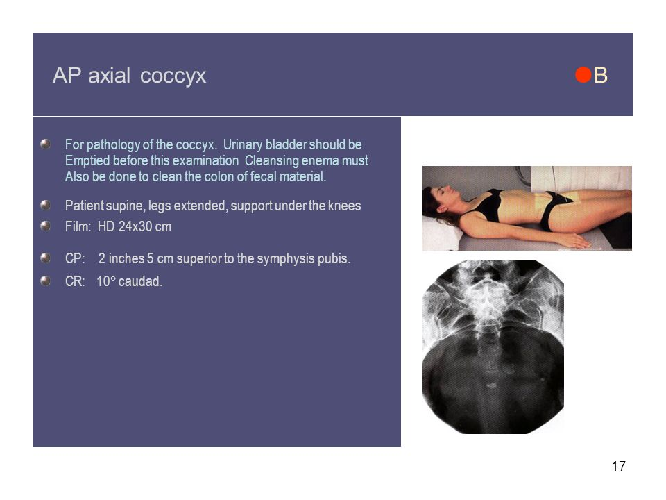 AP axial coccyx B For pathology of the coccyx. Urinary bladder should be.