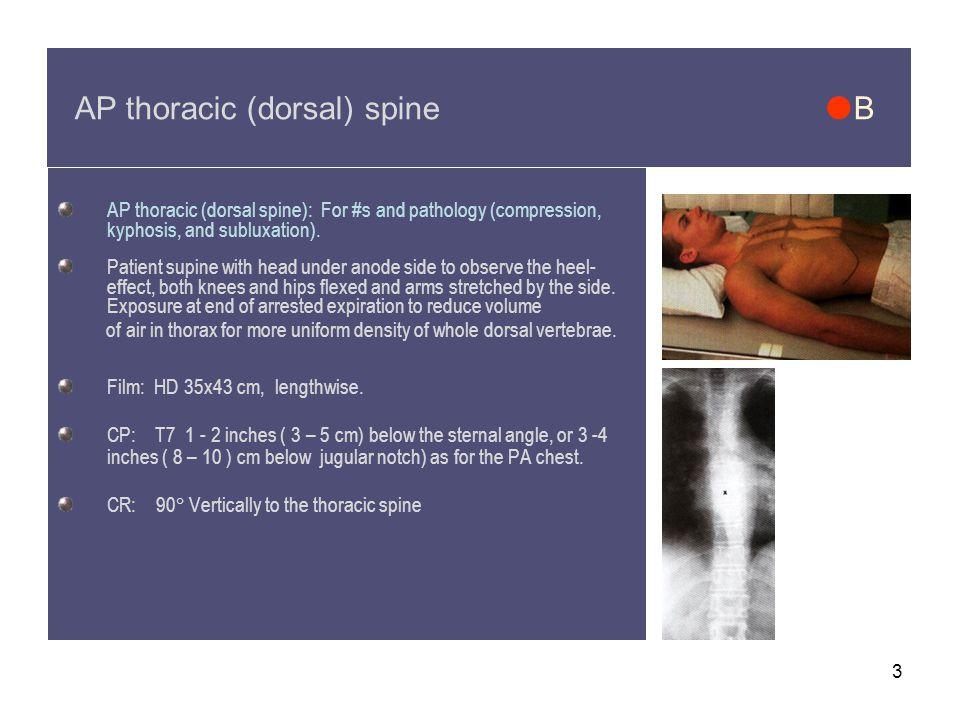 AP thoracic (dorsal) spine B