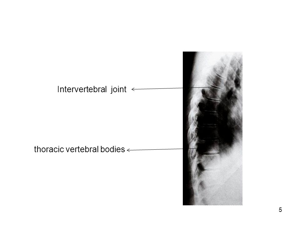 Intervertebral joint thoracic vertebral bodies