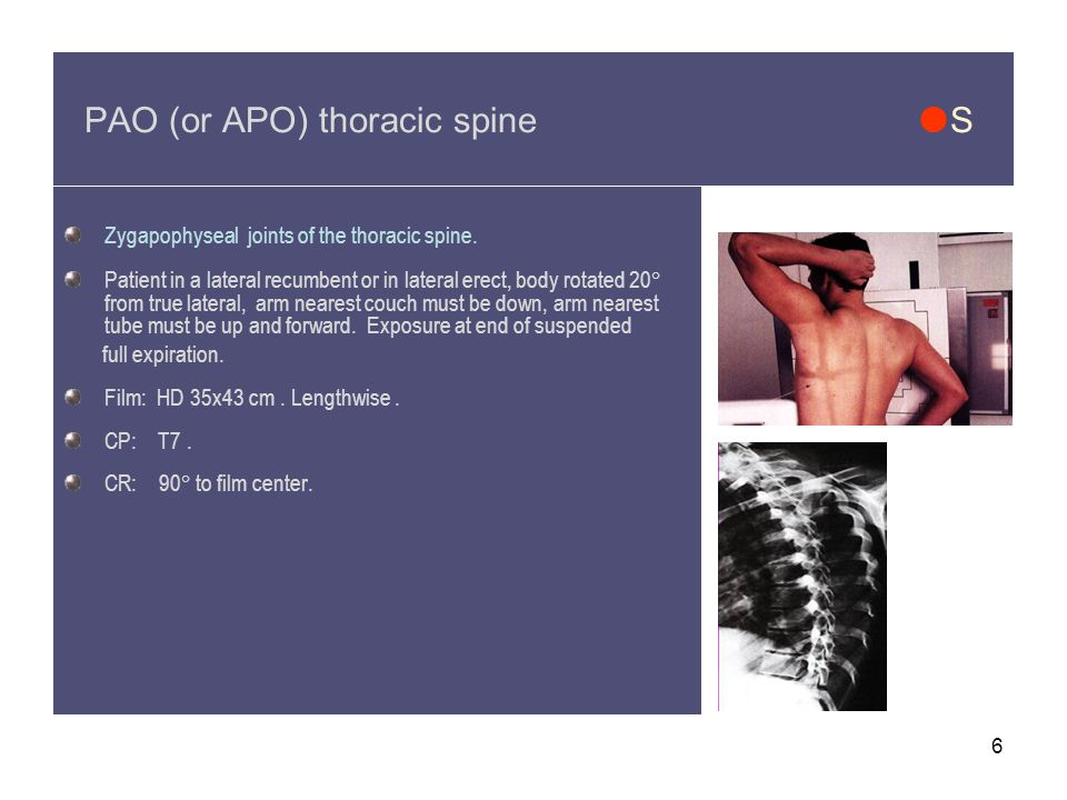 PAO (or APO) thoracic spine S