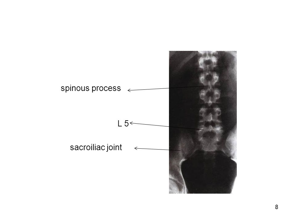 spinous process L 5 sacroiliac joint