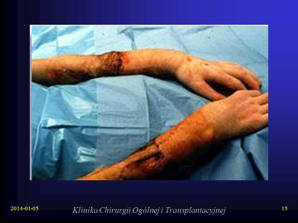 Klinika Chirurgii Ogólnej i Transplantacyjnej