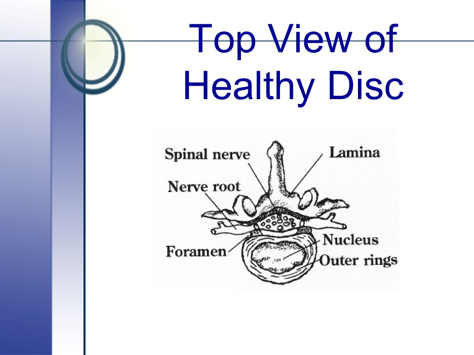 Top View of Healthy Disc