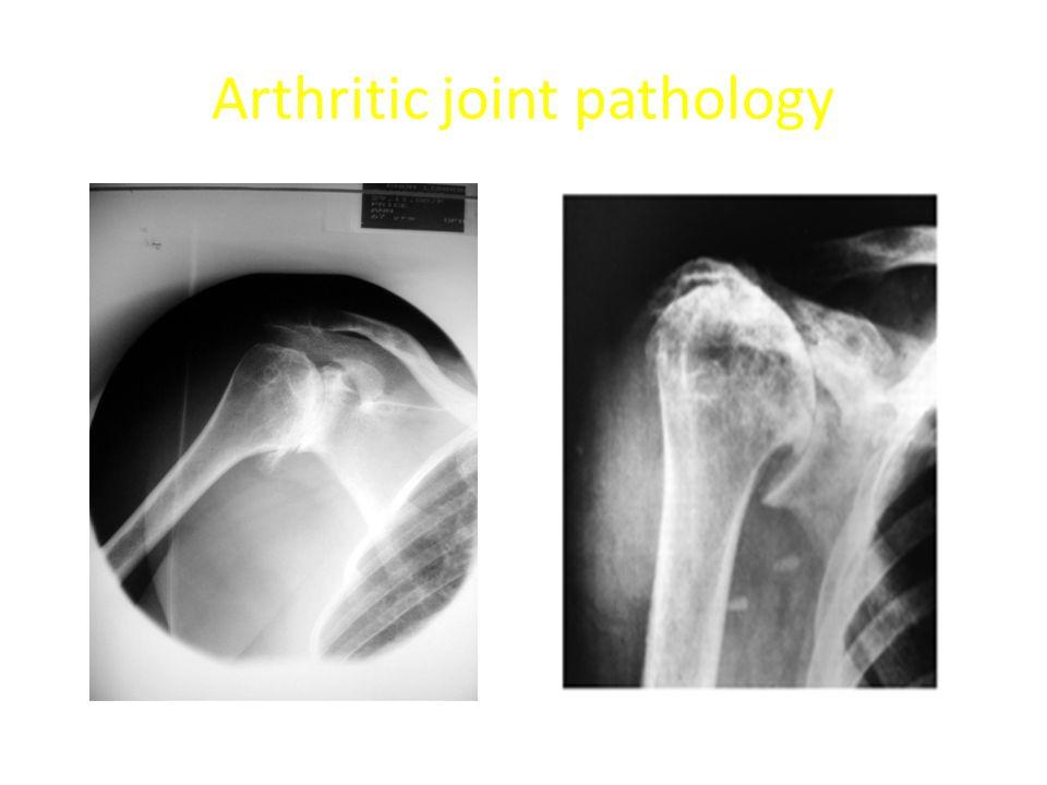 Arthritic joint pathology