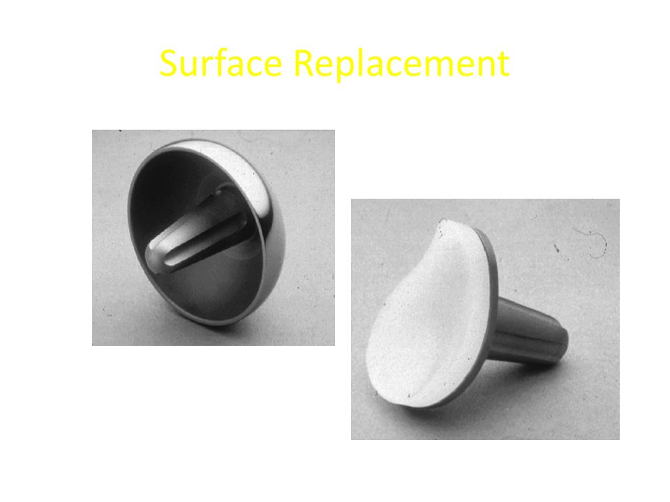 Surface Replacement