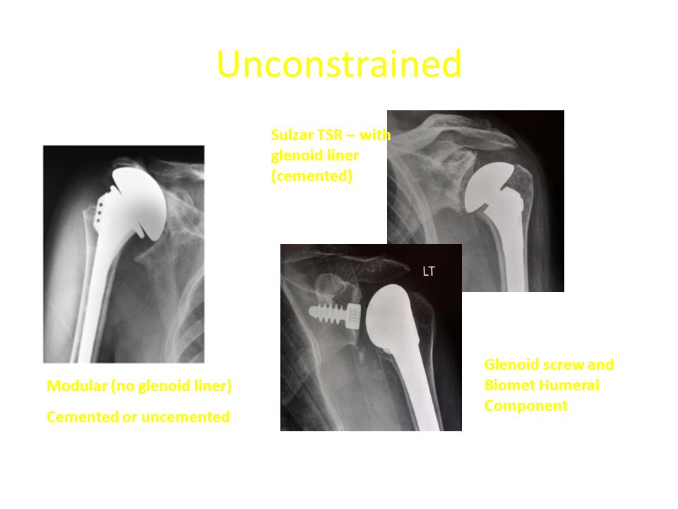 Unconstrained Sulzar TSR – with glenoid liner (cemented)