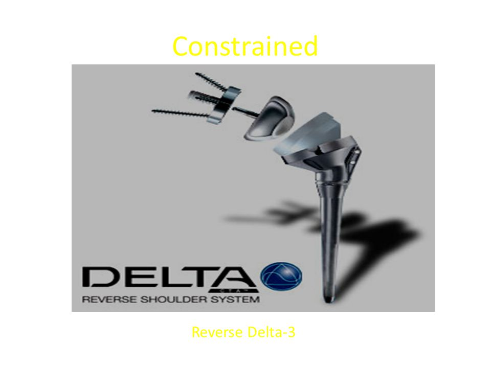 Constrained Reverse Delta-3