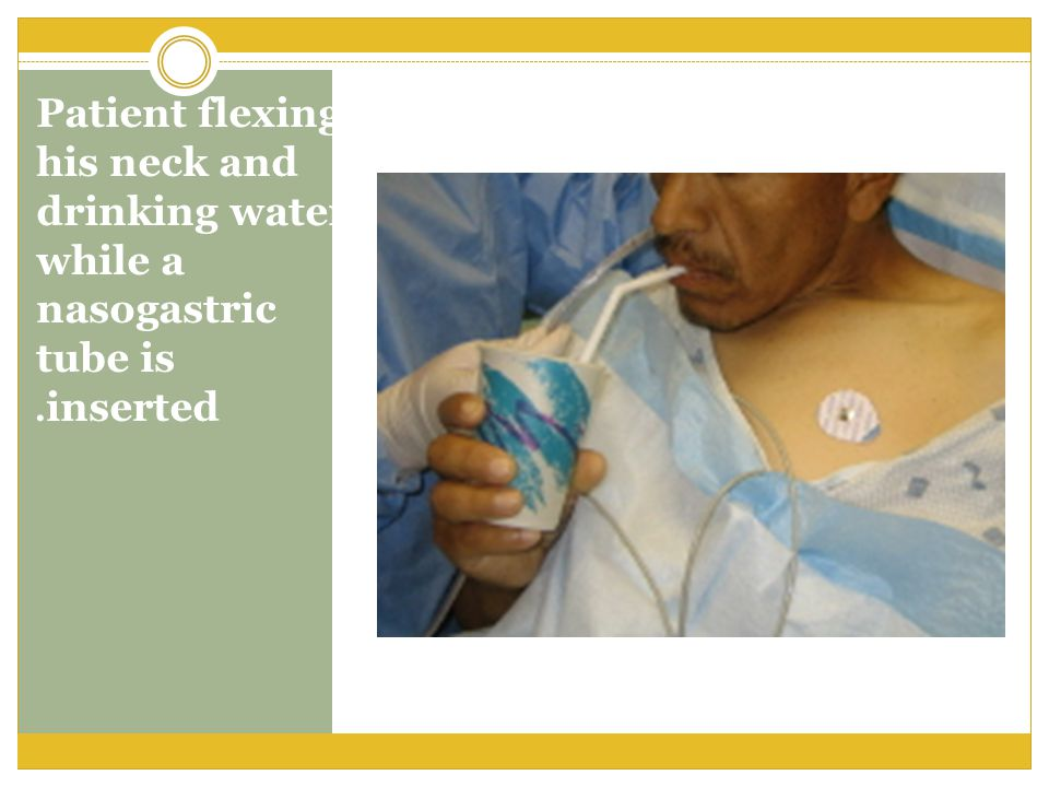 Patient flexing his neck and drinking water while a nasogastric tube is inserted.