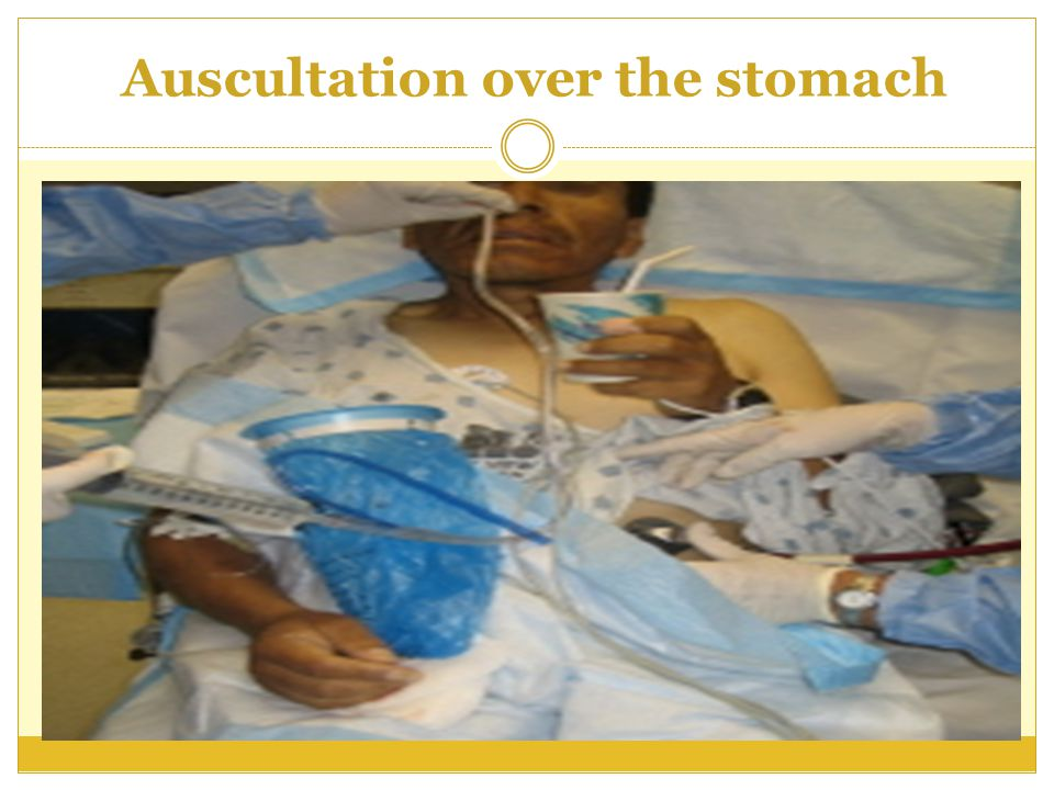 Auscultation over the stomach