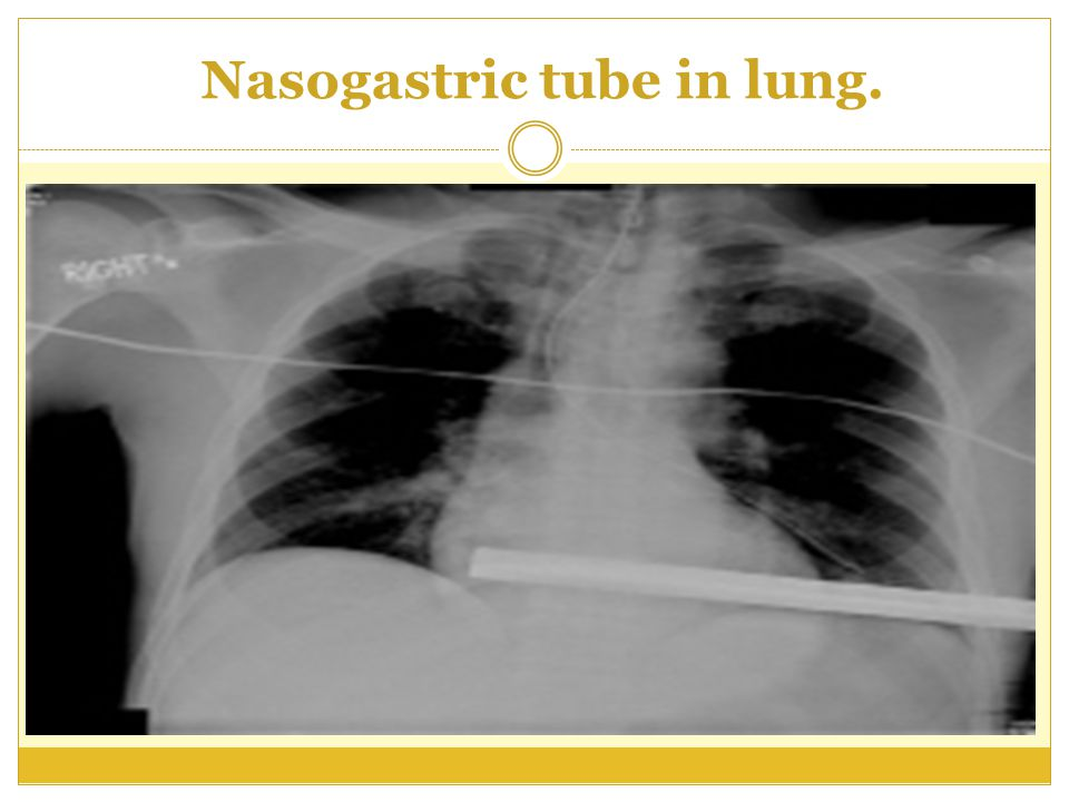 Nasogastric tube in lung.