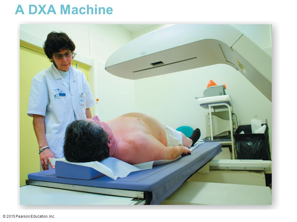 A DXA Machine © 2015 Pearson Education, Inc.
