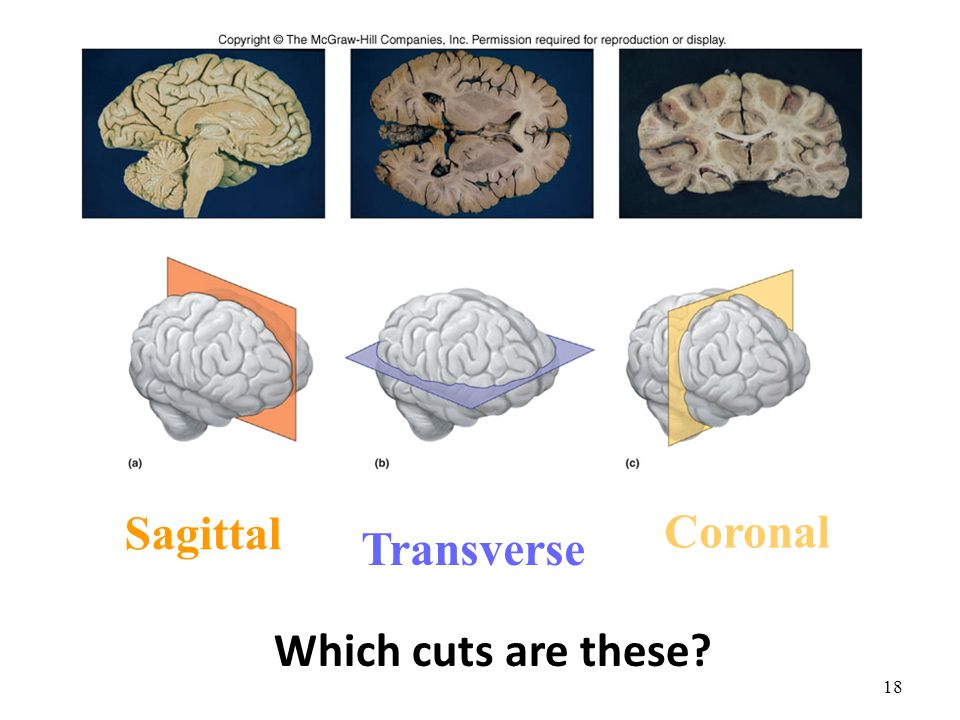 Sagittal Coronal Transverse Which cuts are these