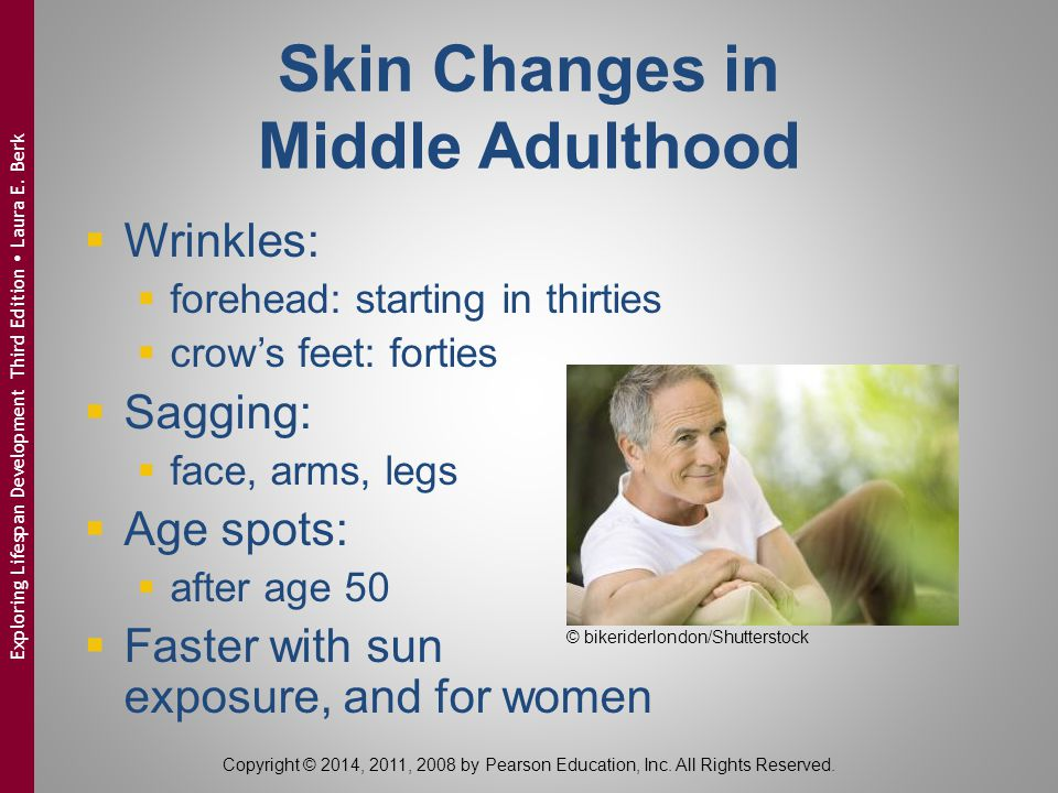 Skin Changes in Middle Adulthood