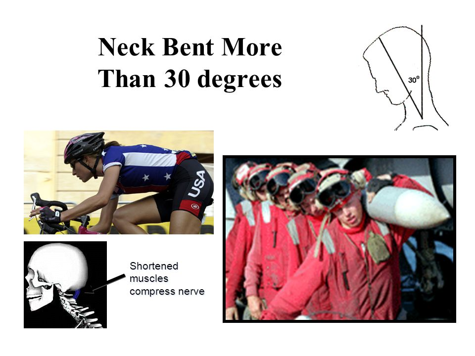 Neck Bent More Than 30 degrees