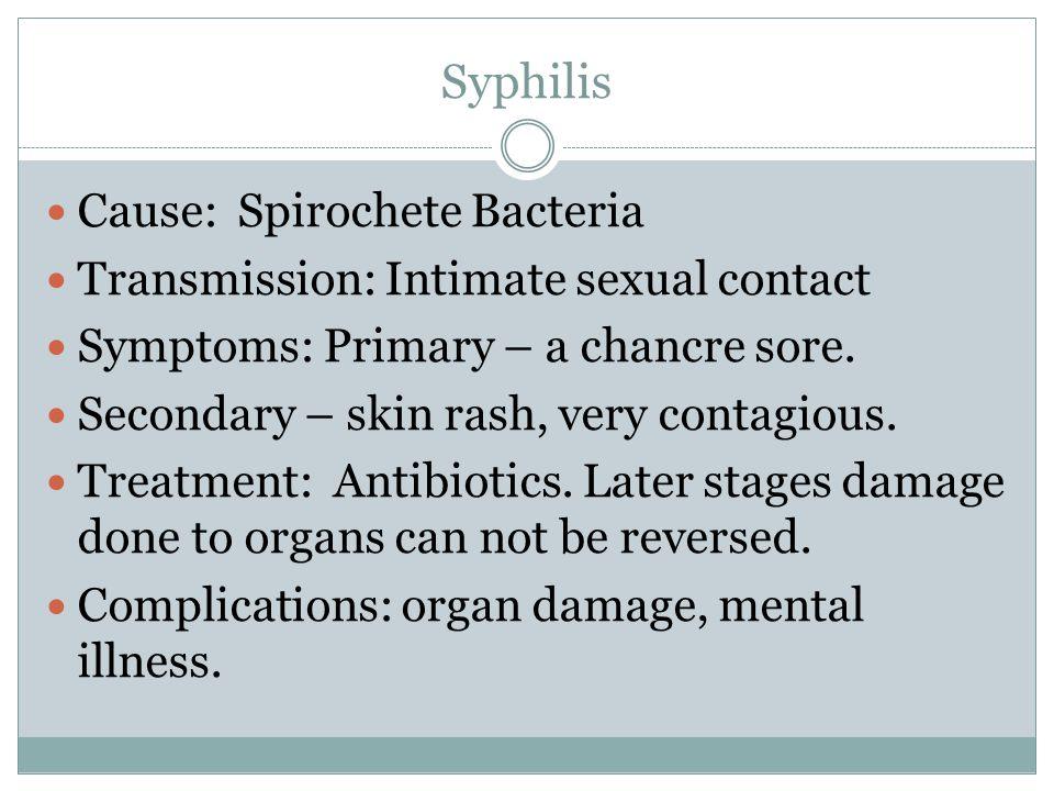 Syphilis Cause: Spirochete Bacteria