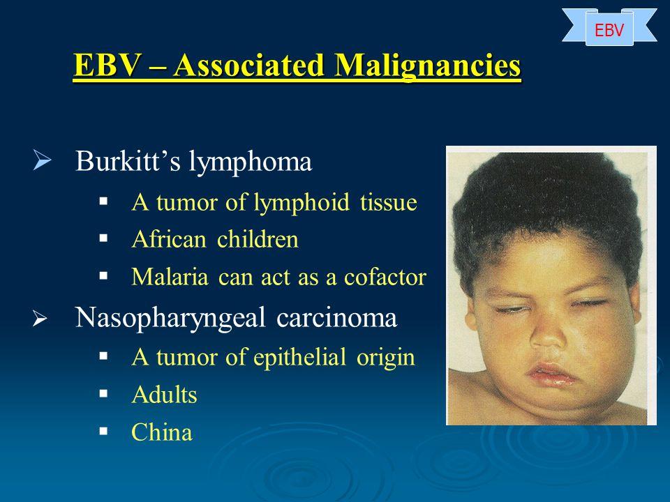 EBV – Associated Malignancies