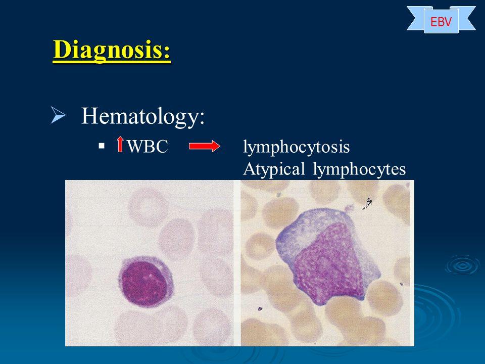 EBV Diagnosis: Hematology: WBC lymphocytosis Atypical lymphocytes