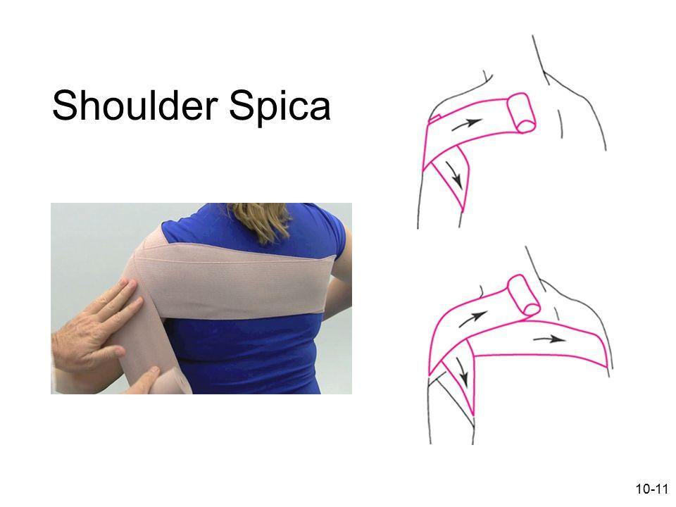 Shoulder Spica