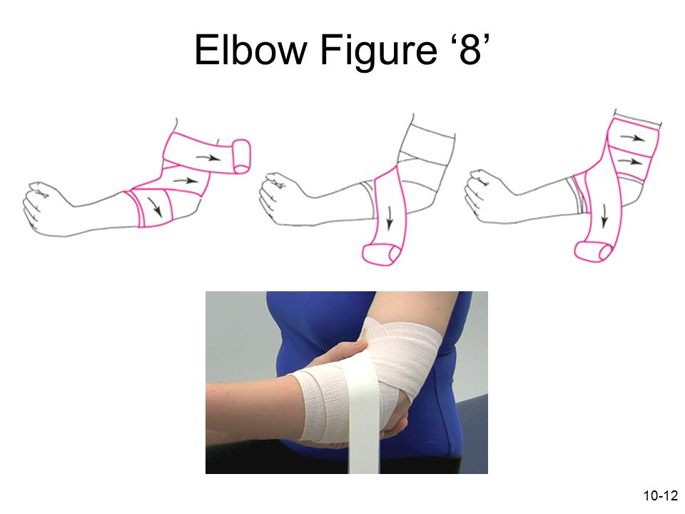 Elbow Figure '8'