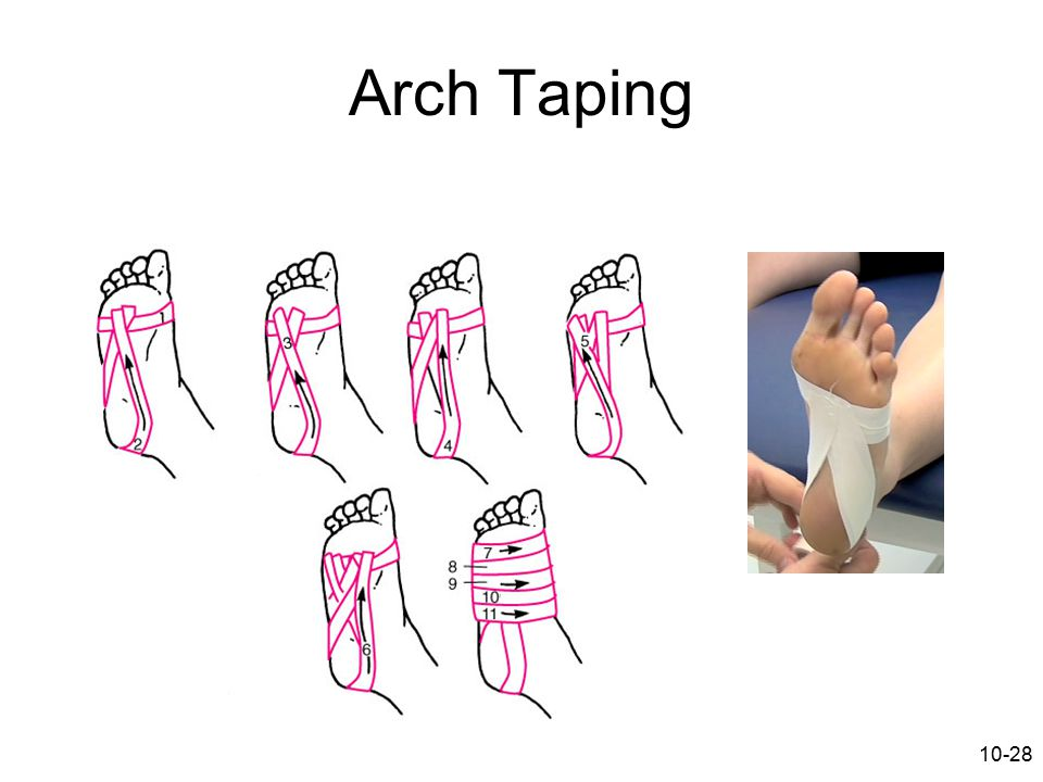Arch Taping