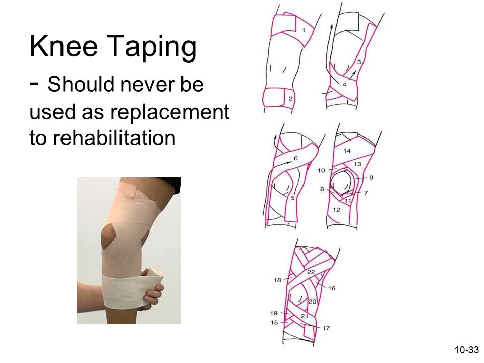 Knee Taping - Should never be used as replacement to rehabilitation