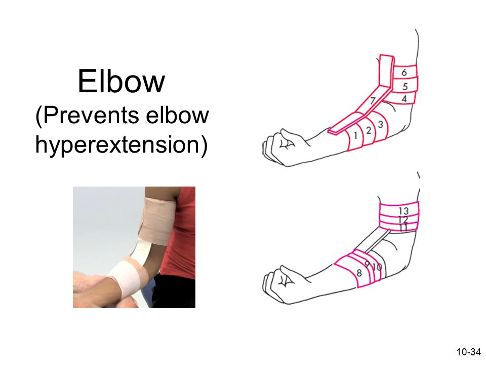 Elbow (Prevents elbow hyperextension)