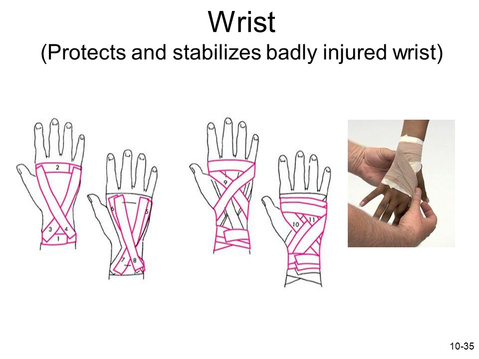 Wrist (Protects and stabilizes badly injured wrist)
