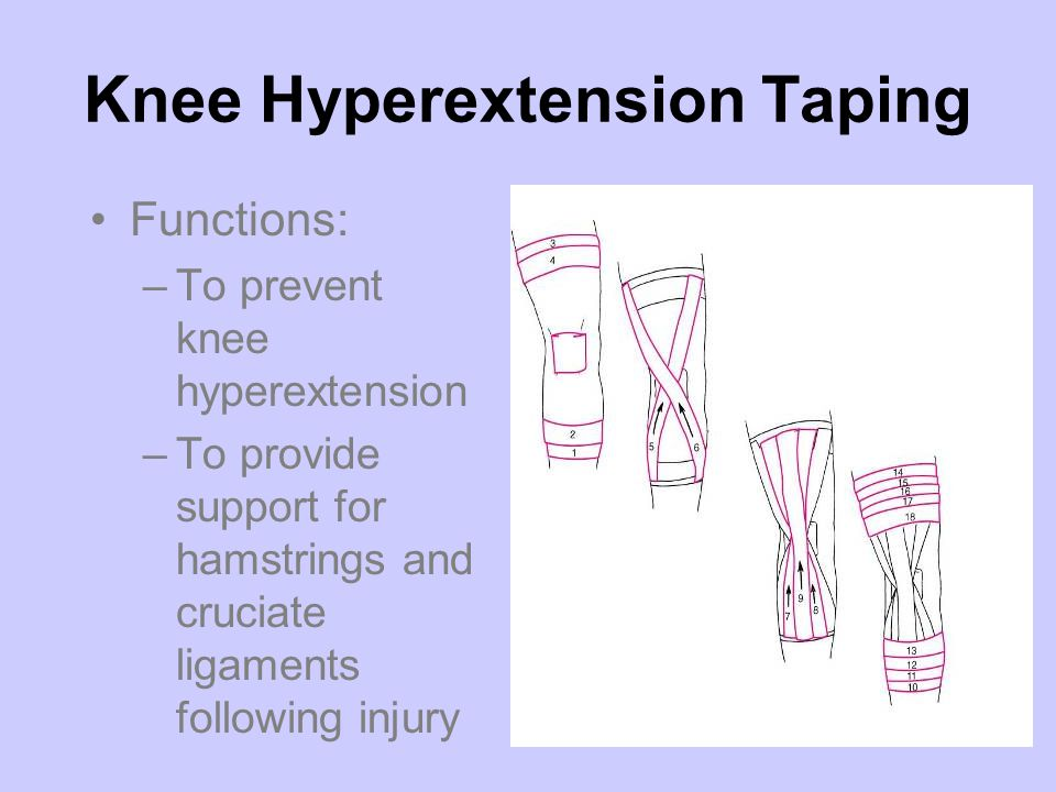 Knee Hyperextension Taping