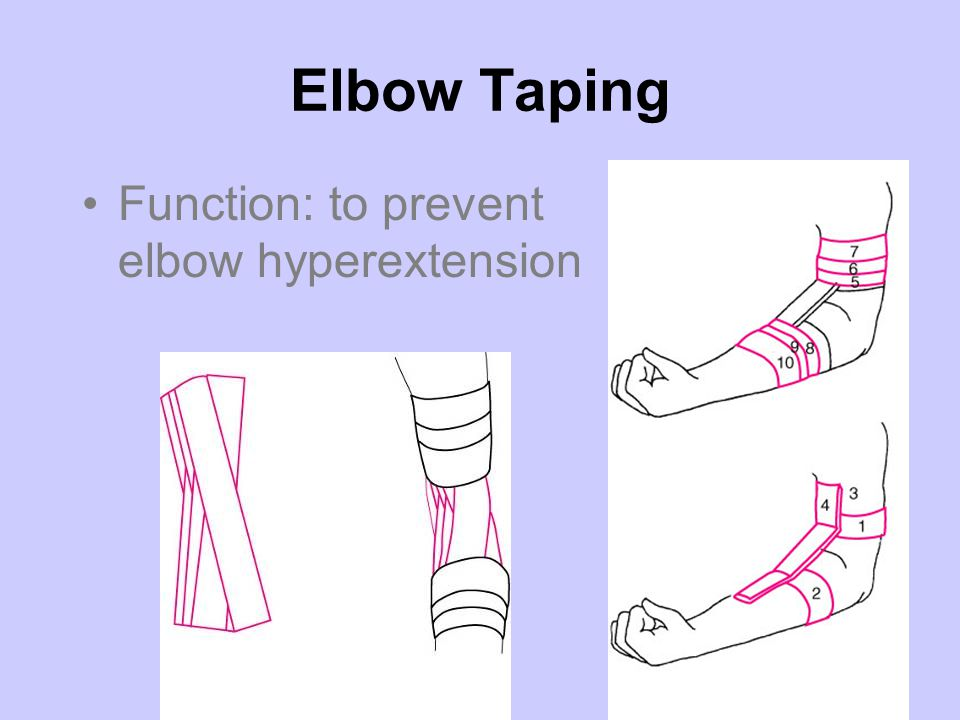 Elbow Taping Function: to prevent elbow hyperextension