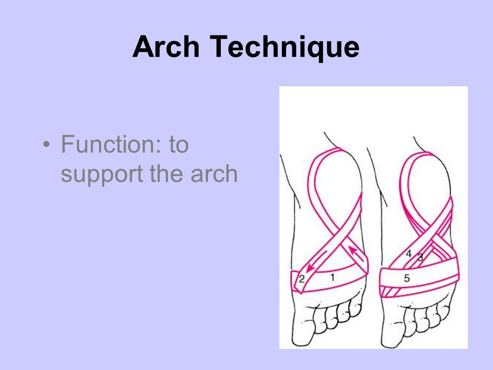 Arch Technique Function: to support the arch