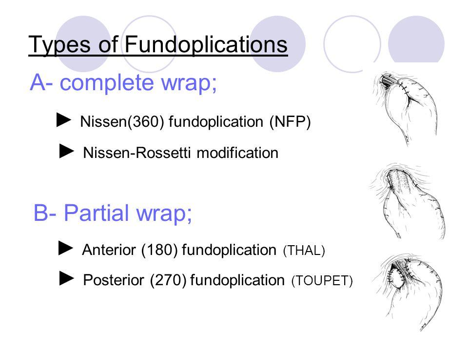 Types of Fundoplications