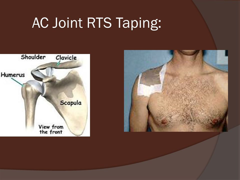 AC Joint RTS Taping: