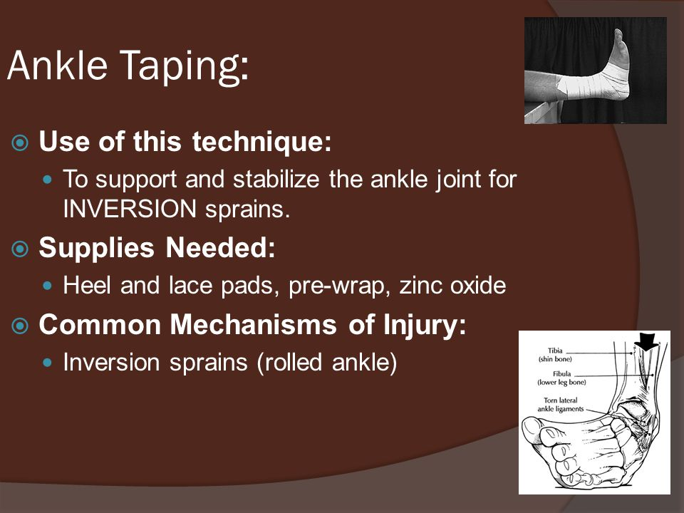 Ankle Taping: Use of this technique: Supplies Needed: