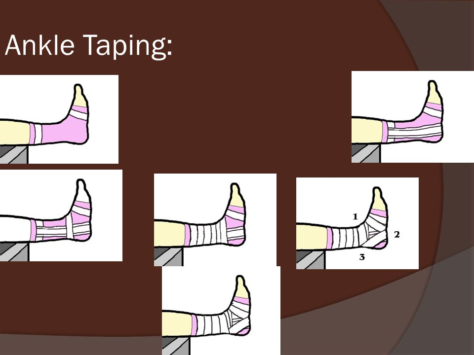Ankle Taping: