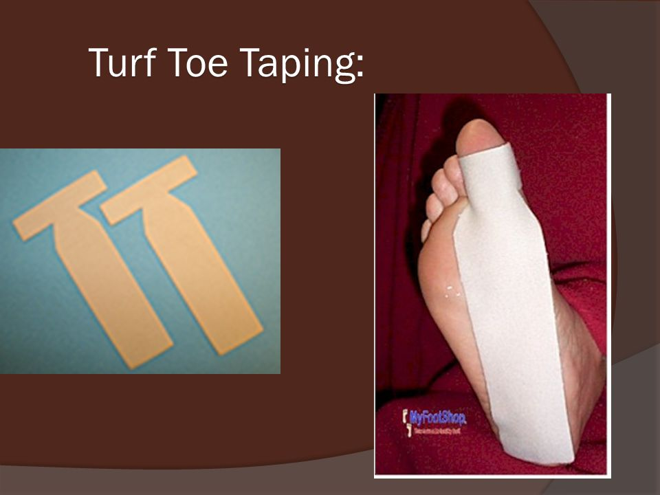 Turf Toe Taping: