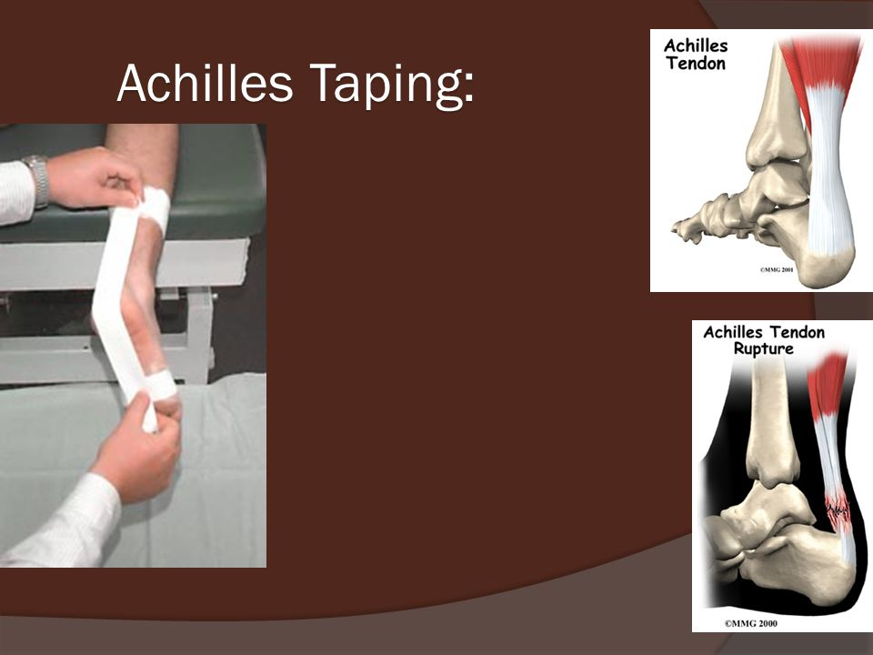 Achilles Taping:
