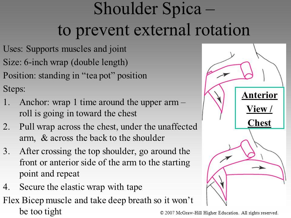 Shoulder Spica – to prevent external rotation