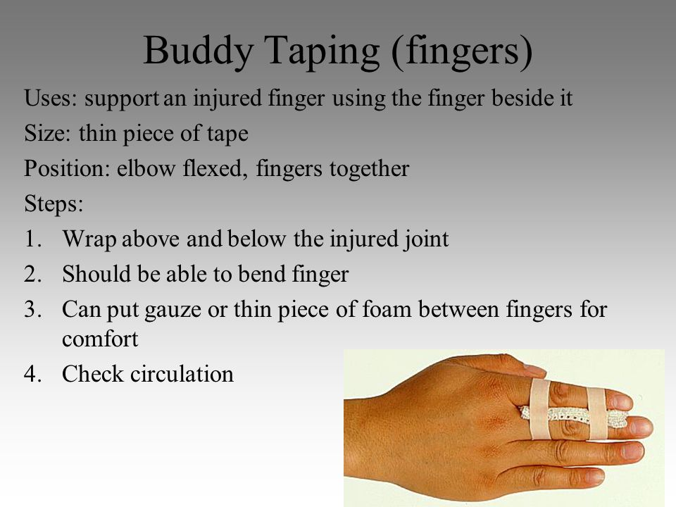 Buddy Taping (fingers)