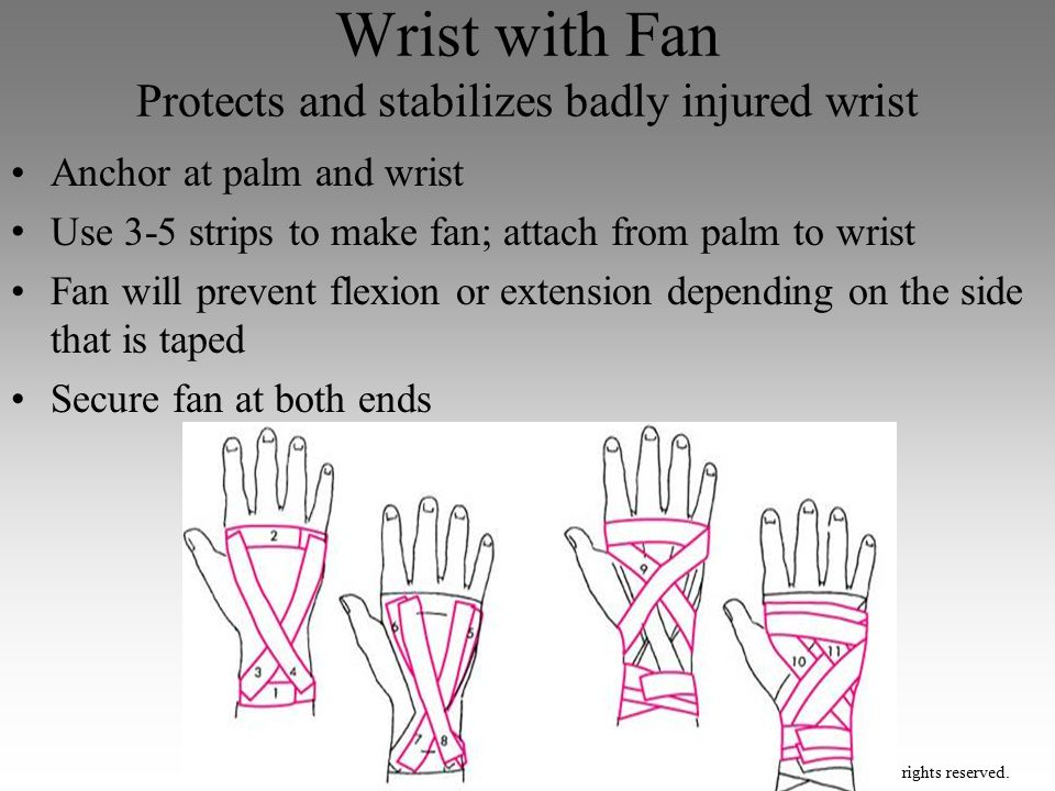 Wrist with Fan Protects and stabilizes badly injured wrist